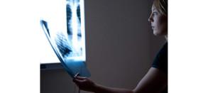 x-ray-harmful2